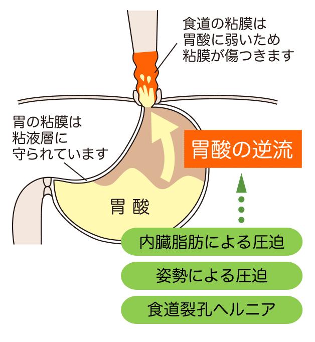 食道・胃の病気|井上内科消化器...